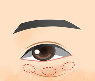 下まぶたのたるみ/目の下のクマ取り(経結膜脱脂法)