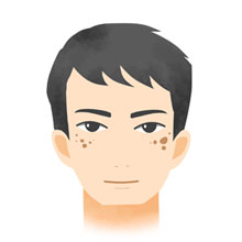 日光性色素斑(老人性色素斑)