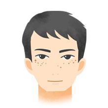 ADM(後天性真皮メラノサイトーシス)