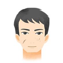 炎症後・治療後の色素沈着