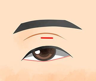 眼瞼下垂 切開術