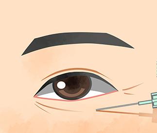 目の下のしわ改善(ヒアルロン酸注入・ボトックス注射)