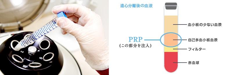 prp_regeneration_img_02-03