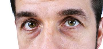 目の下のクマ