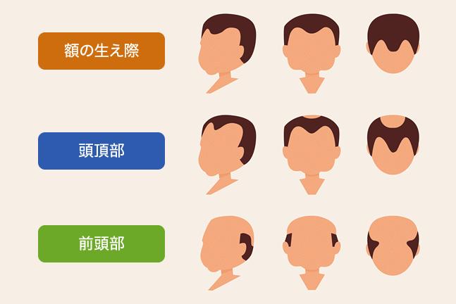 薄毛の種類