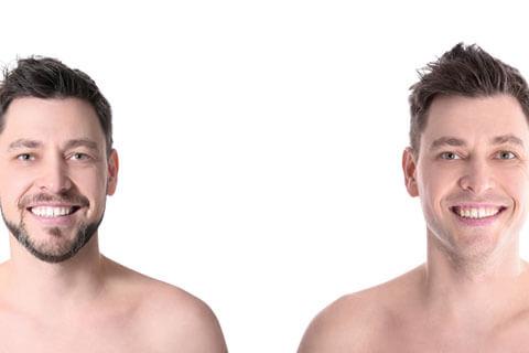 男のヒゲ脱毛、まずはどんな感じか試してみたい!