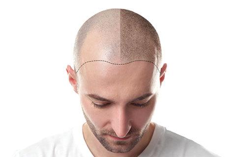「自毛植毛」のメリット・デメリットとは?注意すべきポイントや相場費用などを解説